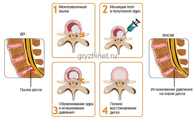 восстановление межпозвоночного диска с помощью гелевого препарата