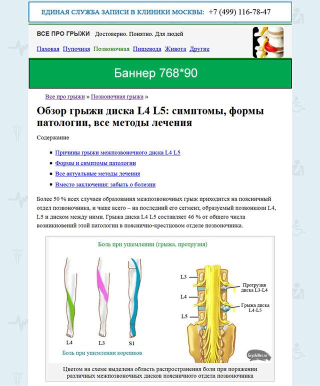 схема размещения баннера на сайте gryzhinet.ru